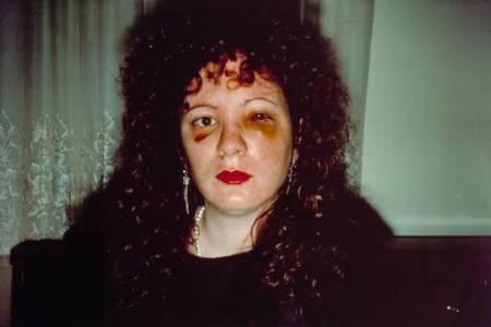 Autorretrato de Nan Goldin tras ser maltratada (1984). Link a una entrada sobre Goldin en el Blog Fotoartesocial